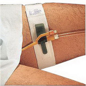 """Hold-n-Place Foley Catheter Holder Leg Band, Up to 20"""" (Each)"""